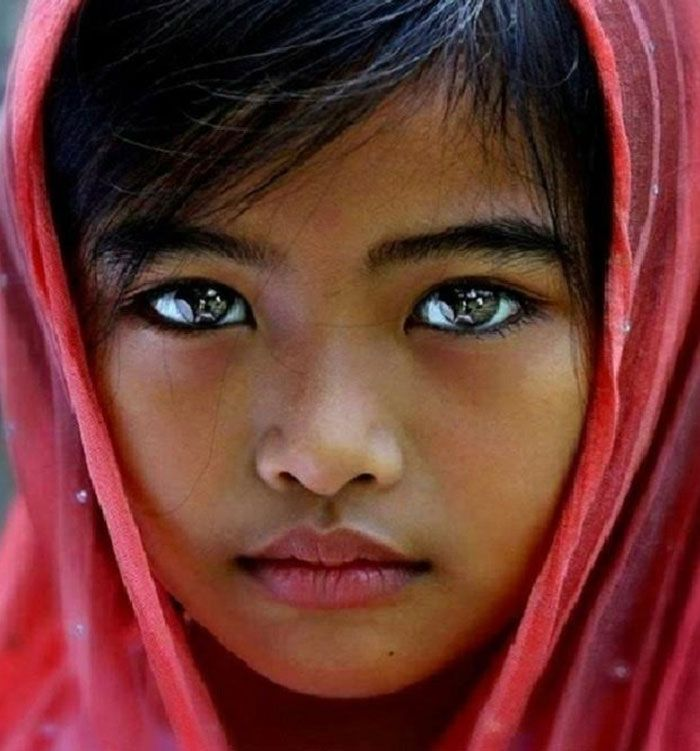 They say the eyes are the windows to the soul, and some people are just born with amazingly beautiful eyes. Some of these children have:     Bright eyes     Two different colored eyes
