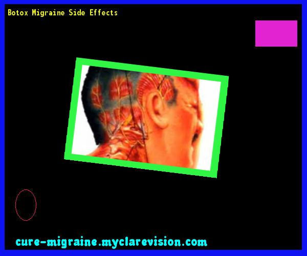 Botox Migraine Side Effects 171623 - Cure Migraine