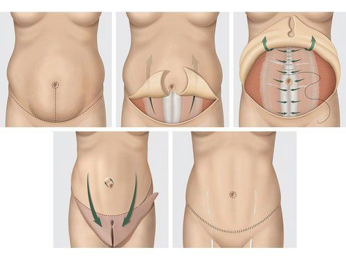 How to recover faster from Tummy Tuck surgery.