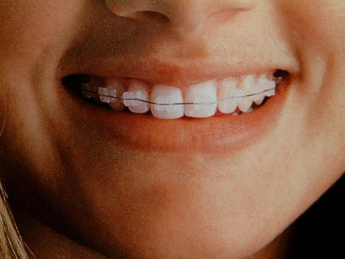 192 Best Images About Braces On Pinterest Braces For