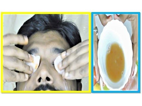 Specially Beauty Tips for MEN / Remove UNDER EYE DARK CIRCLES MEN in hindi