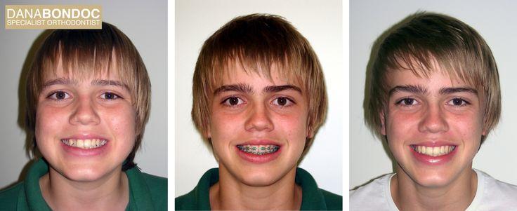 dental crossbite before and after Teeth braces, Dental