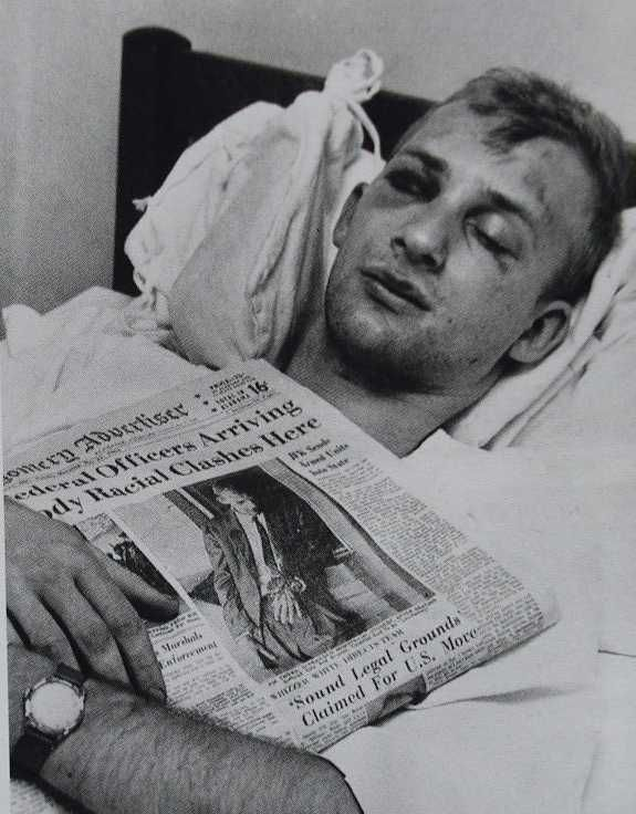 Jim Zwerg.  Freedom rider.  Attacked by the Klan he waited for two hours for transport to a hospital - no white ambulance would take him.