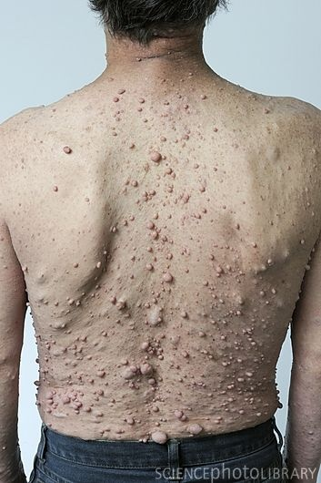 Genetic Disorders: Neurofibromatosis This is very close to what my back looks like.
