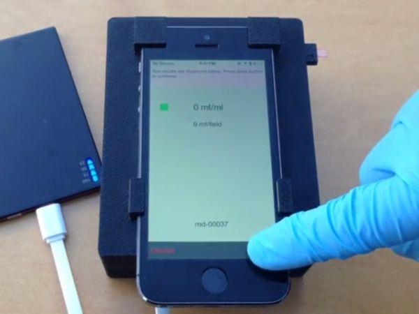 Un microscopio de teléfono móvil puede detectar parásitos en una gota de sangre