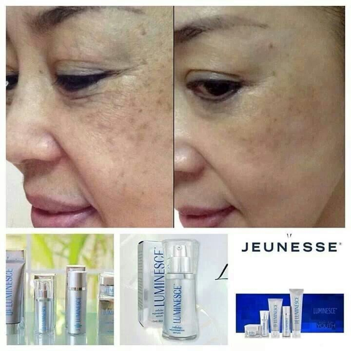 Jeunesse testimony, lets wrinkles, and improves skin colour, less spots…