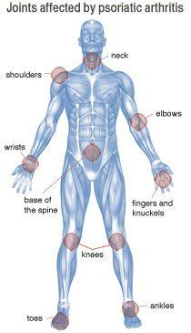 Google Image Result for http://psoriaticarthritissymptoms1.com/wp-content/uploads/2011/08/psoriatic-arthritis-joints.jpg