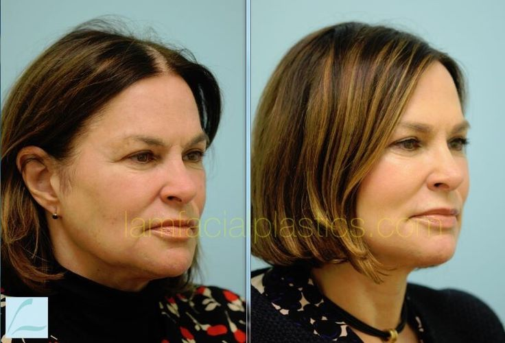 Fat Transfer and Facelift
