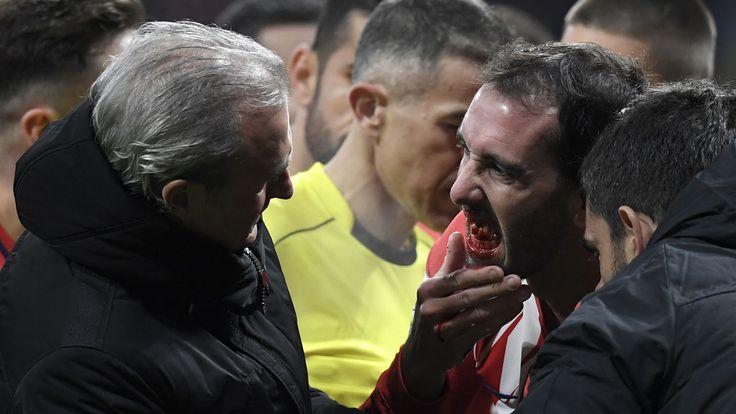 Empleados del Atlético buscaron los dientes de Godín en el césped del Wanda