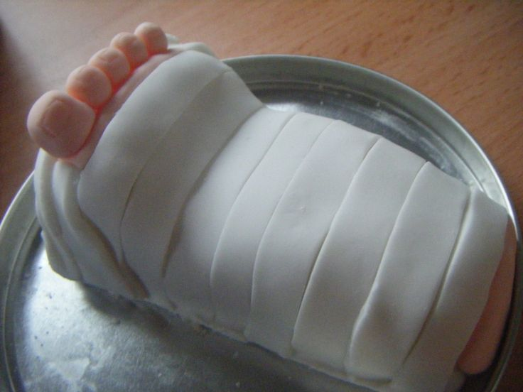 Broken Leg Cast I Made This Miniature Cake Out Of Sponge