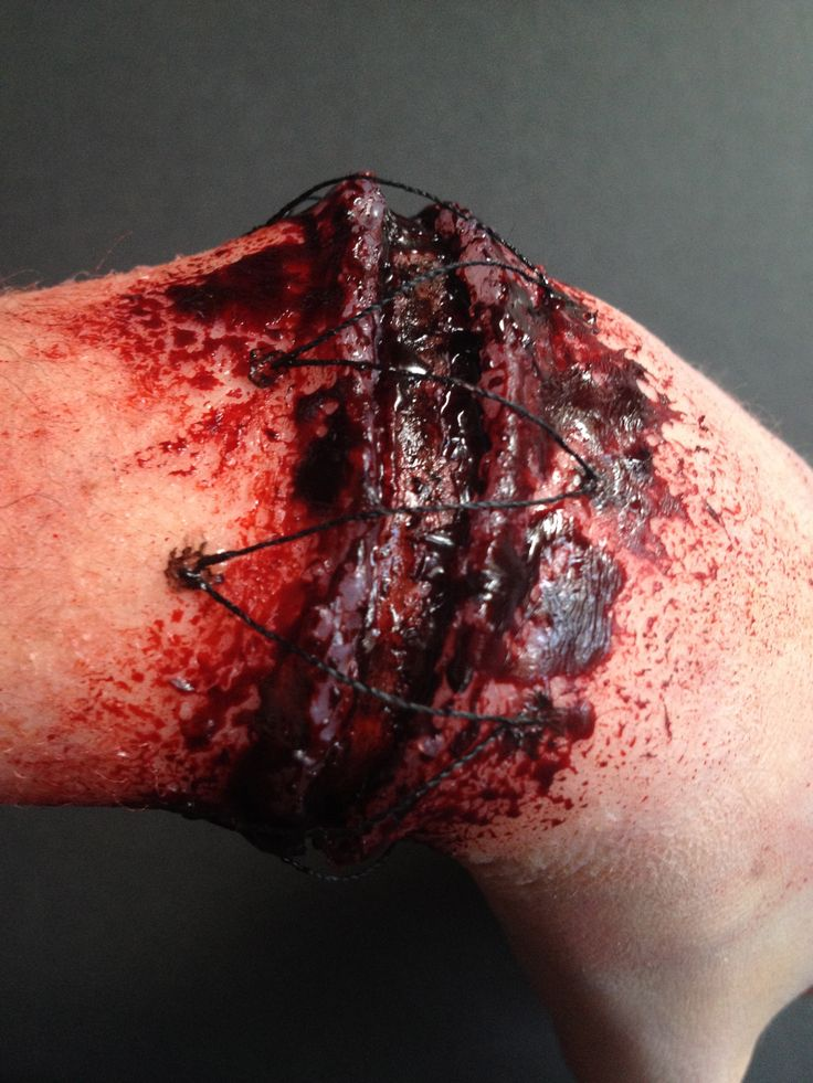 Reattached hand special effects makeup for halloween Check out the rest of my work: https://www.behance.net/gallery/Special-Effects-Makeup/11391217