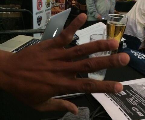 Antwaan Randle El Shows Off Deformed Finger | Robert Littal Presents BlackSportsOnline