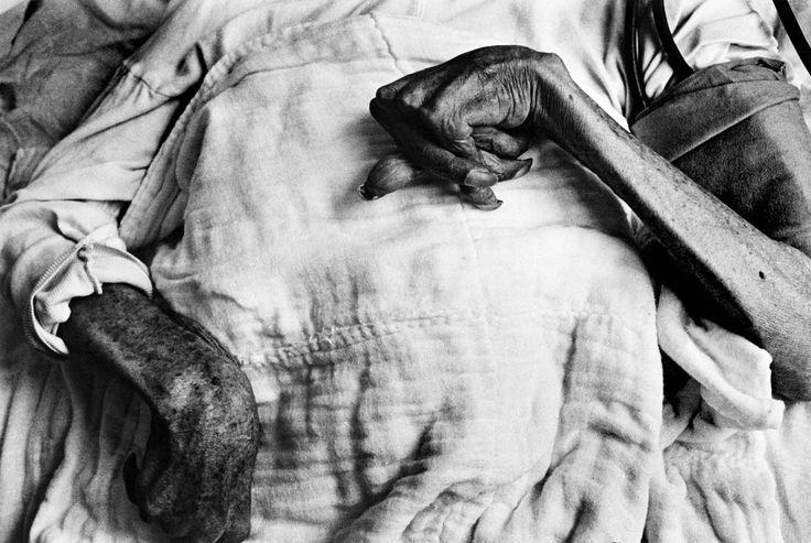 W. Eugene Smith: JAPAN. Minamata. Iwazo FUNABA's crippled hands. She is a victim of the Minamata disease. 1971.