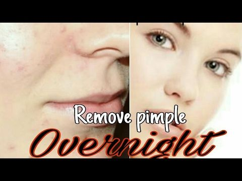 how to get rid of pimples using toothpaste