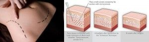 """Painless Liposuction """"Tumescent Liposuction, RDT (Radial Endodermo Therapy)"""" 