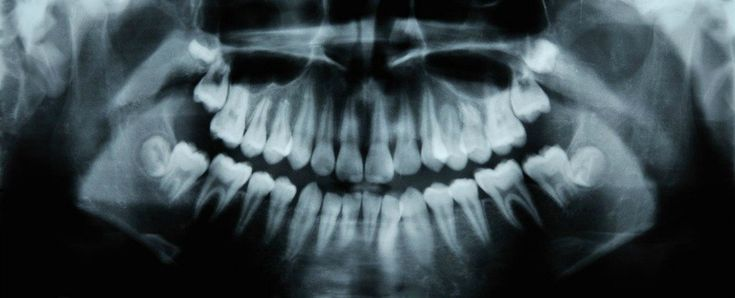Dental fillings may soon be left in the ash heap of history, thanks to a recent discovery about a drug called Tideglusib.
