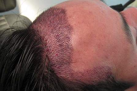 What is the Best Solution for Male Pattern Baldness? https://transplantbesthair.weebly.com/home/what-is-the-best-solution-for-male-pattern-baldness