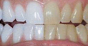 Finns det något mer iögonfallande än ett vackert leende? Om du inte är nöjd med det nuvarande utseendet på ditt leende, men du inte vill användakemiska medel för att få dina tänder vitare, måste du se den här videon. Videon kommer att gå igenom hur du gör din egen tandkräm med hjälp av helt naturliga …