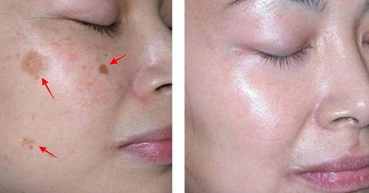 Мы представляем Вам 4 средства, которые помогут Вам избавиться от пятен на лице!