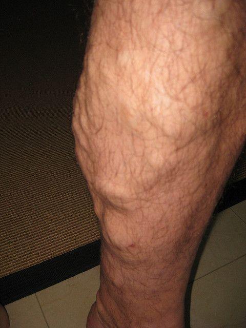 Varicose Veins: The truth - News - Bubblews- http://www.bubblews.com/news/1384146-varicose-veins-the-truth