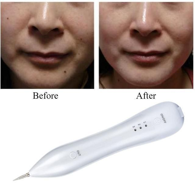 Spoteraser Pro Remove Tag Mole Tattoo On Skin 50 Off Today