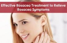 Effective Rosacea Treatment to R