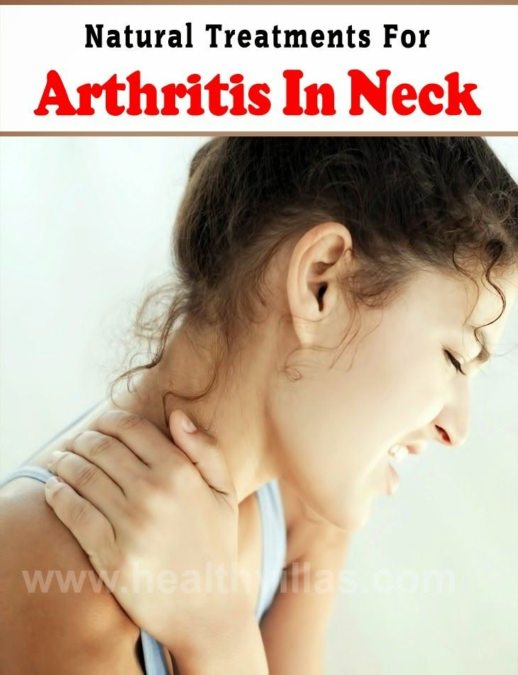 Both medical and natural options are there in front of you with regard to treatment for arthritis in the neck. Before going for medical options for treating neck arthritis, it is always advised to consider natural options first. The section below discusses about a few natural treatments for neck arthritis.