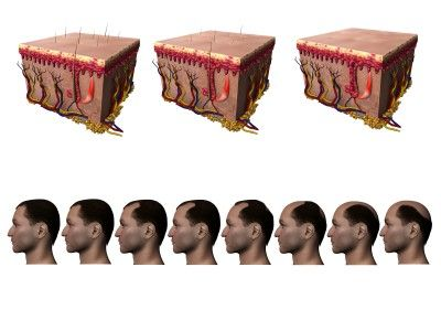 What are the signs of Male-Pattern Baldness?    A tell-tale sign of male-pattern baldness is a receding, M-shaped hairline. Next, the hair on top of your head also starts to thin, leaving a bald spot. Eventually, the two meet, leaving a horseshoe pattern of hair around the sides. Notice the diagram. http://www.hairlossexpert.org/male-pattern-baldness/