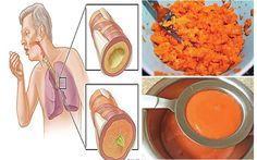 Αρχαία συνταγή: Αφαιρεί το φλέγμα από τους πνεύμονες & για παιδιά Σπιτική αρχαία συνταγή σιροπιού που απομακρύνει το φλέγμα από τους πνεύμονες και θεραπεύει