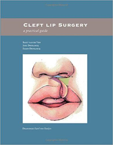 Cleft lip surgery: a practical guide #medical #books #free #download #pdf #review #residency #clinical #india #online #textbooks #students #pictures #book #SurgeryBooksPDF #SurgeryBooks #Surgery