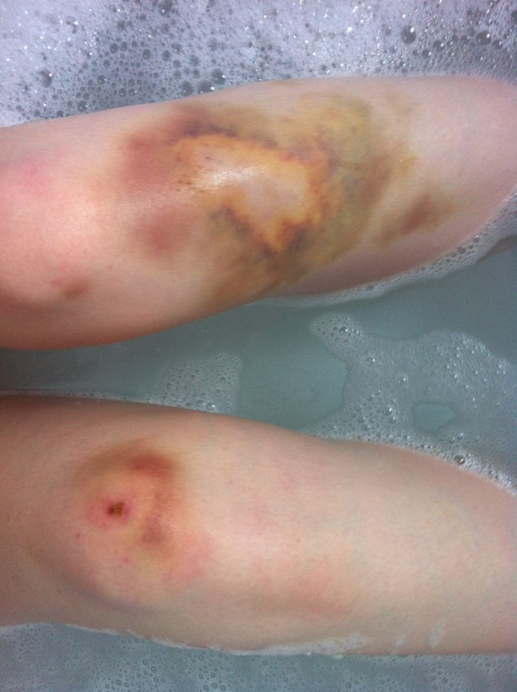 how to get rid of a big bruise