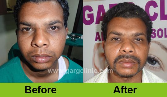 Beard and moustache transplant can help you in getting the pride of being a man. So don't feel ashamed and go for beard transplant. http://www.gargclinic.com  #beardtransplant #hairtransplant #gargclinic