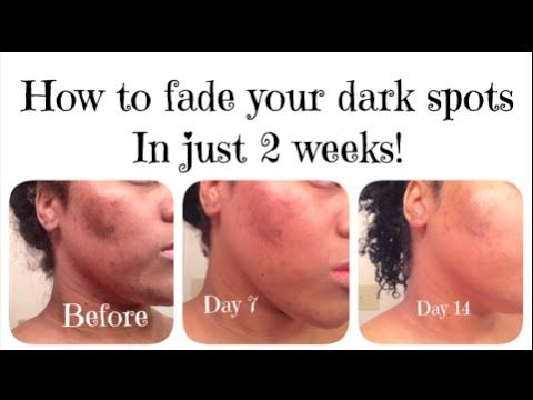 9 Best How To Remove Dark Spots Using Cream Images On