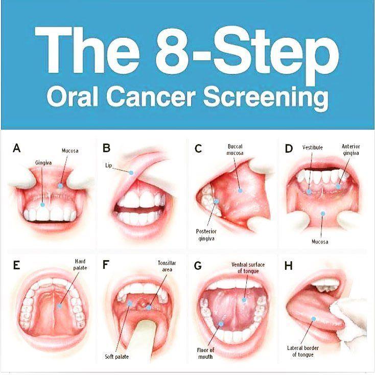 April is Oral Cancer Screening Month  Learn & Protect Yourself  #save #life #smile #oral #health #screening #oralcancer #oralcancerawareness #check #8Step #cancer #exam #dentist #usc #trojan #dental @dr.ardydds by omiddental Our Oral Cancer Screening Page: http://www.myimagedental.com/services/preventive-dentistry/oral-cancer-screening/ Other Preventive Dentistry services we offer: http://www.myimagedental.com/services/preventive-dentistry/ Google My Business…