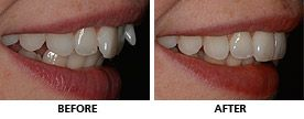 This woman wanted an orthodontic option that was fast and removable so the Inman Aligner was the ideal choice. The remarkable transformation was completed in only 9 weeks and she was thrilled with the result. http://www.praisdental.co.uk/straightening/