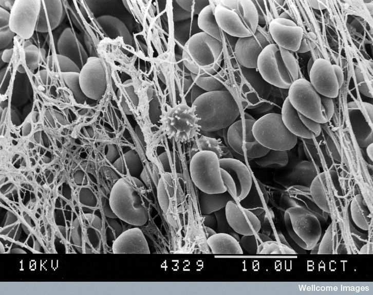 Image of the Week - July 17, 2017  CIL:38993 - http://www.cellimagelibrary.org/images/38993  Description: Scanning electron microscope image of a blood clot showing a white blood cell in the center.  Authors: David Gregory and Debbie Marshall  Licensing: Attribution-NonCommercial-NoDerivs 2.0 UK: England & Wales (CC BY-NC-ND 2.0 UK)