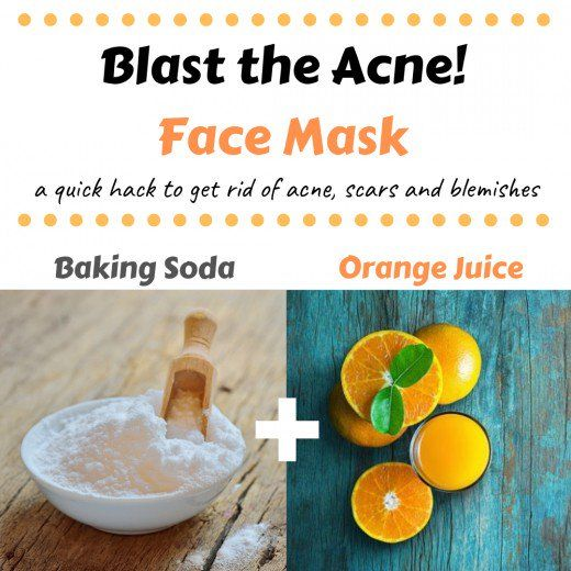 DIY Homemade Face Masks for Acne (How to Stop Pimples Naturally)