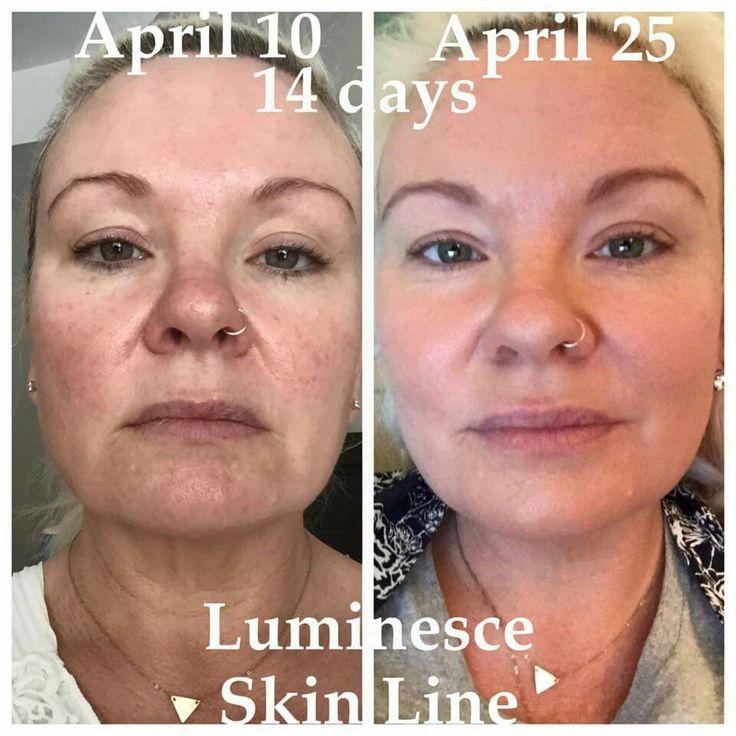 #SERUM LUMINESCE - clareia manchas e confere luminosidade à pele!! resultados com apenas 2 semanas de uso. WhatsApp 44 9142-1777