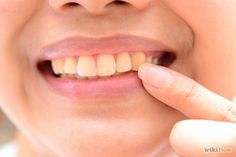 """""""Cure cavities & repair tooth decay naturally"""" video at end. 3 Ways to Restore Tooth Enamel - wikiHow"""
