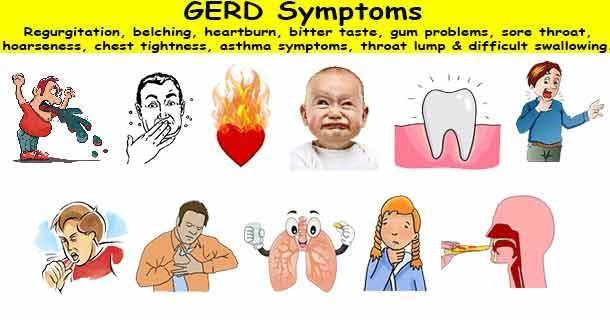 GERD Symptoms #AcidRefluxSymptoms