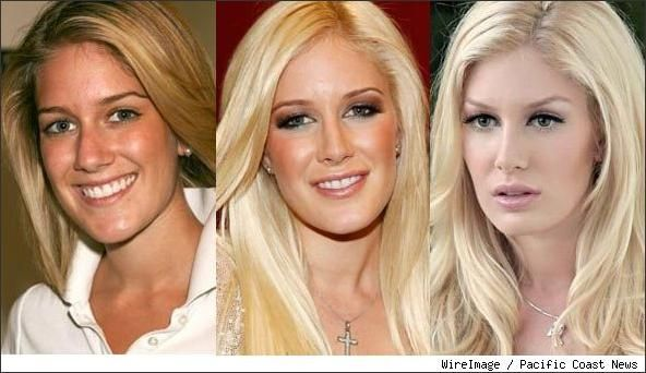 Heidi Montag. People judged her before surgery for being ugly.. then after surgery for having too much work done. Give her a break she is beautiful no matter what