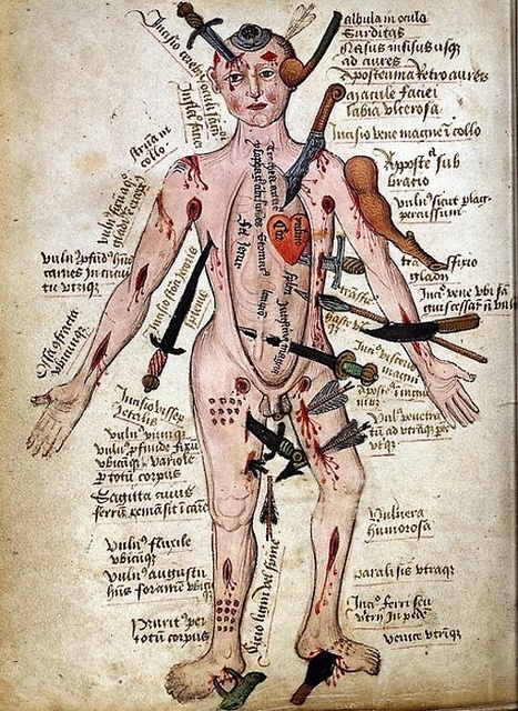 body injury. by Dreaming in the deep south, via Flickr