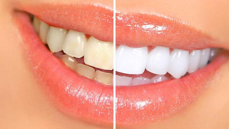 БЫСТРОЕ ОТБЕЛИВАНИЕ ЗУБОВ ДОМА Вы уже знаете как сделать зубы белыми? http://3dwhite.in.net/