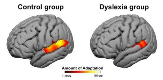 Neuroscientists have discovered that a basic mechanism underlying sensory perception is deficient in individuals with dyslexia, according to new study. The brain typically adapts rapidly to sensory input, such as the sound of a person's voice or images of faces and objects, as a way to make processing more efficient. But for individuals with dyslexia, the researchers found that adaptation was on average about half that of those without the disorder.