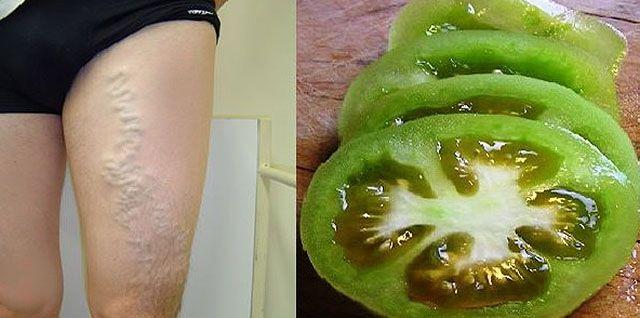 Elhalványulnak a vénák, a duzzanat visszahúzódik. Így gyógyíthatod a visszereidet paradicsommal! - Megelőzés - Test és Lélek - www.kiskegyed.hu