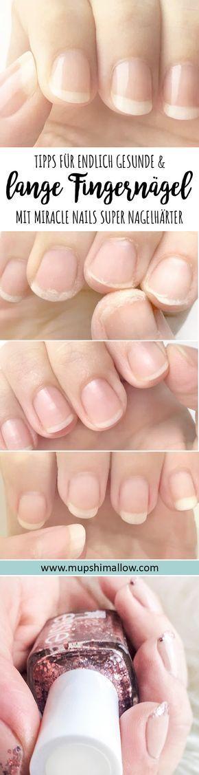 Endlich lange und gesunde Fingernägel – Miracle Nails Super Nail Hardener