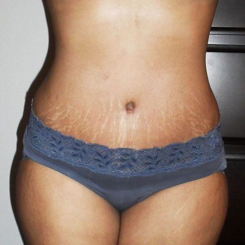 Ways To Cure For Stretch Marks