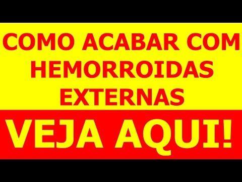 Como Acabar com Hemorroidas Externas – Como Tratar Hemorroidas (ASSISTA AQUI) - http://tratamento.100hemorroidas.net/como-acabar-com-hemorroidas-externas-como-tratar-hemorroidas-assista-aqui/