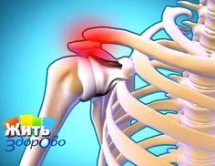 Лечебная гимнастика при плечелопаточном периартрозе. Упражнения выполняются в исходных положениях стоя (в том числе и у шведской стенки), лежа, в коленно-кистевом положении, сидя на стуле. Но сначала нужно убрать боль! Дело зашло далеко, когда боль в плече не дает спать по ночам. Боль в плече сочетается с симптомами шейного остеохондроза: головной болью, головокружением, болями в лопатке, шее, в руке, онемением пальцев рук.