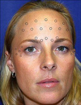 Non-Surgical Facelift Utilizing Face Toning Aerobics
